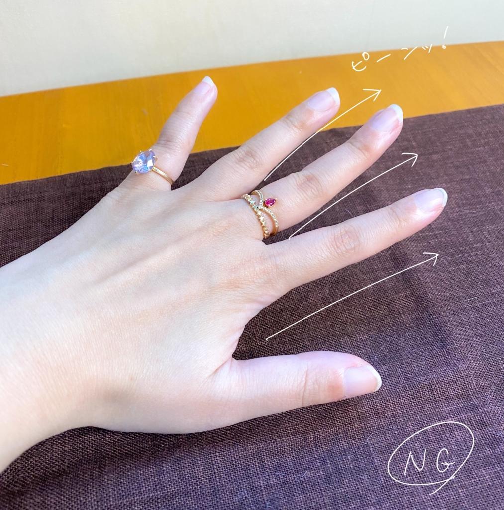 リングが外せない手の形